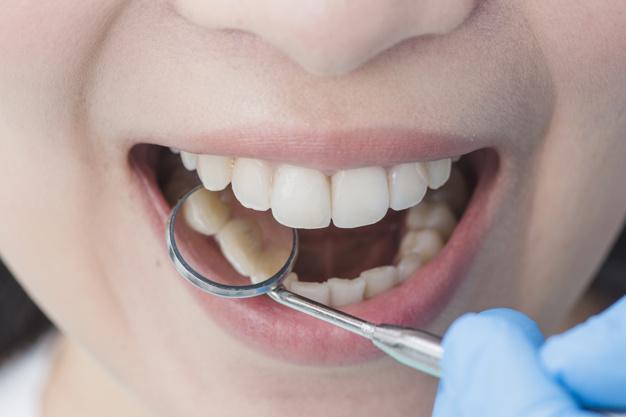 Proteza na implantatih